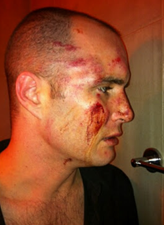 ... people were injured in a savage gay bashing attack earlier this month.